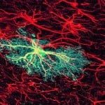 astrocytes-green-neurons-red
