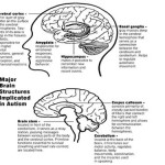 autism-brain-structures-public-fit