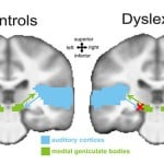 dyslexia-medial-geniculate-body