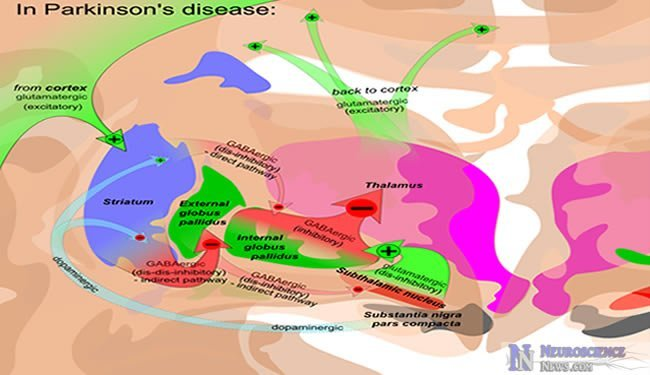 Oxidative Stress  Defective Nucleoli Likely A Cause Of Parkinson U0026 39 S Disease