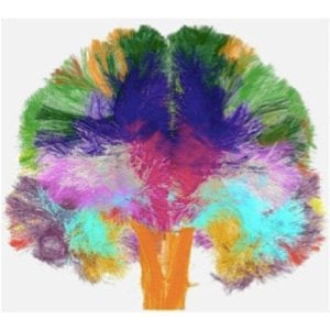 A brain with multiple colored areas is shown.