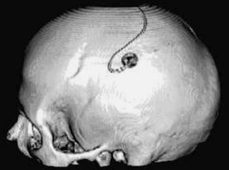 A skull is shown with an electrode on it.