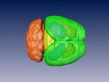 3-D construction of a mouse brain.