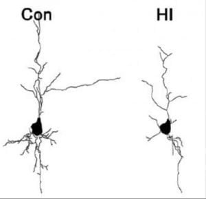 Two drawings of neurons are shown and described well in the caption.