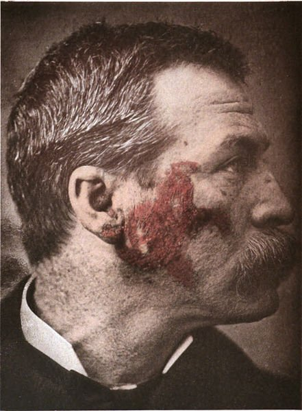 The image shows a person with Lupus erythematosus from around 1900.