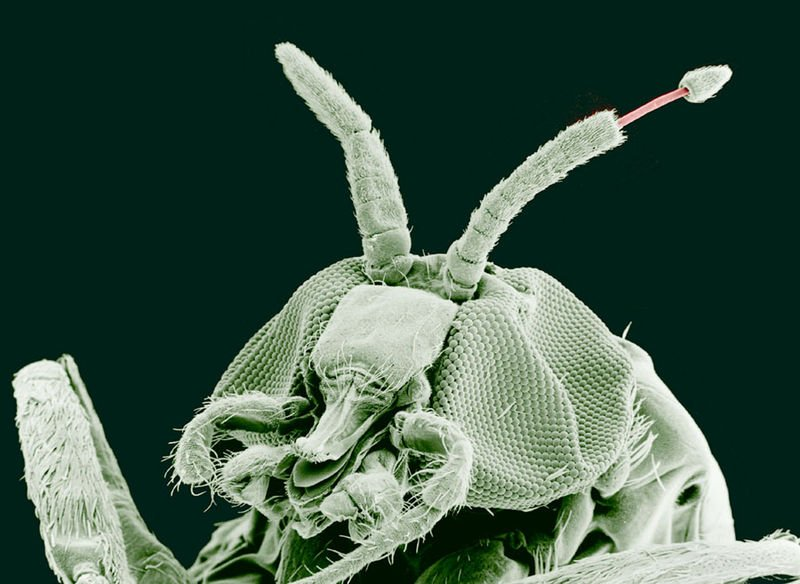 The image shows a black fly with Onchocerca volvulus emerging from its antenna. Onchocerca volvulus is responsible for the parasitic disease Onchocerciasis.