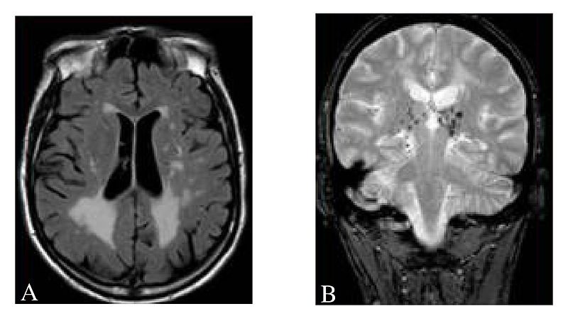 The image shows a brain scan which shows cerebral white matter hyperintensities, lacuna and microbleeds.