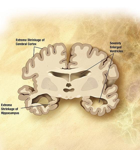 New Genetic Risk Factor For Developing >> Study Identifies 11 New Alzheimer S Disease Risk Genes Mef2c Org