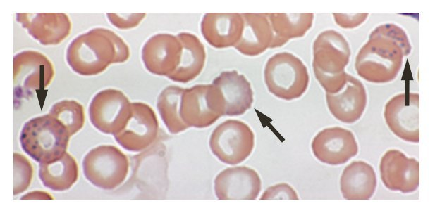 The image shows a close up of blood cells, some of which have evidence of increased levels of lead.