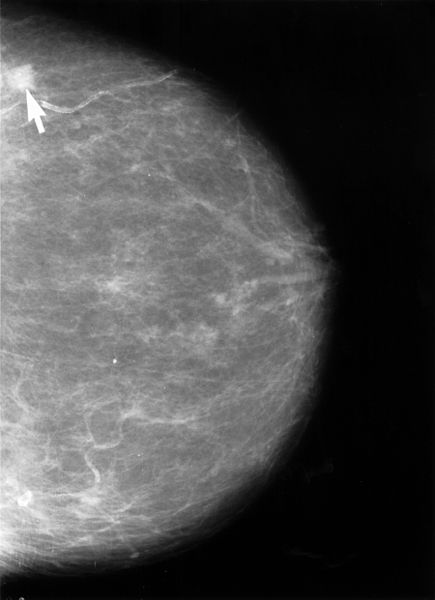 The image shows a mammogram with an arrow pointing to a small, cancerous lesion.
