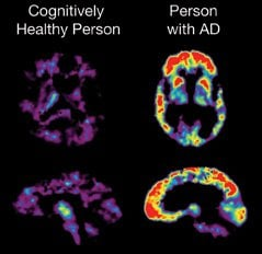 The image shows a comparative brain PET scan of a person with alzheimer's and one without the disease.