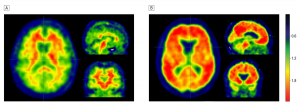 The image shows brain scans of Alzheimer's patients.