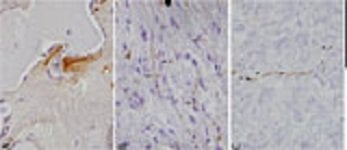 Image shows brain slices with deposits of proteins associated with Alzheimer's and Parkinson's disease.