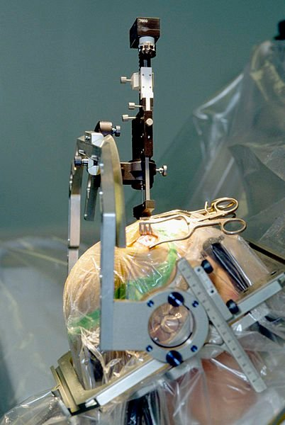 The image shows a person undergoing a deep brain stimulation implant surgery.