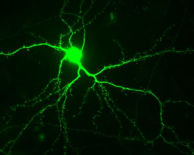 The image shows a neuron stained green.