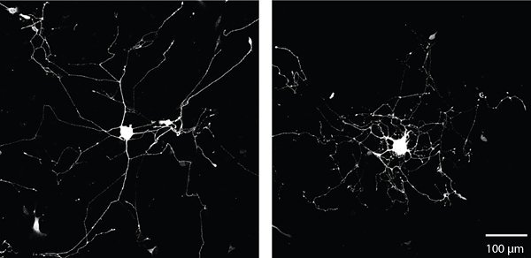 The image shows neuron growth when the axons targeted the mRNA. The caption best describes the image.