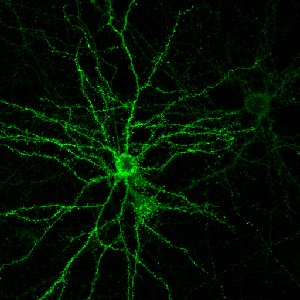 The image shows cultured neurons with projecting dendrites highlighted in green.