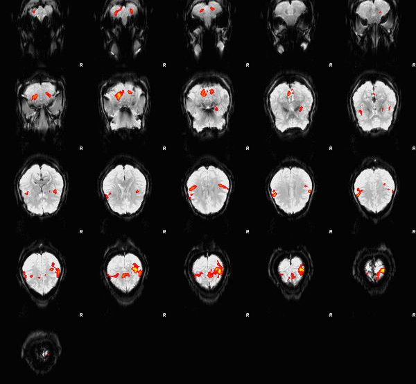 The image is an fMRI depiction of activated brain areas (BOLD) during an index finger-tapping sequence.