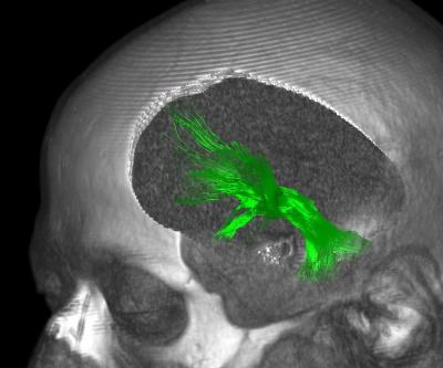A brain image is shown with the medial forebrain highlighted.