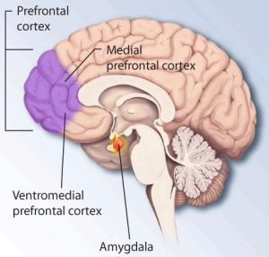 The diagram of the brain highlights the prefrontal cortex, an the area of the brain which is responsible for fear and stress in ptsd.
