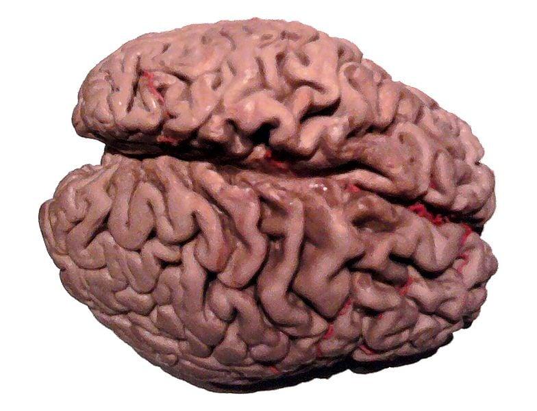The image shows a plastinated Alzheimer's brain.
