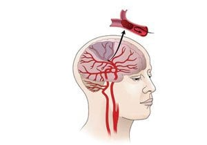 The diagram shows how an ischemic stroke occurs in the brain.