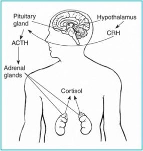 The diagram shows how adrenocorticotropin hormone is secreted in Cushing's disease.