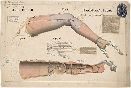 info and history on arm prothesis Modular prosthetic limb capable of effectuating almost all of the movements as a human arm and hand and with more than 100 sensors in the hand and upper arm, the.