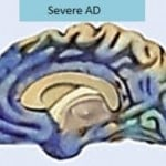 The image shows a brain affected by severe alzheimer's disease.