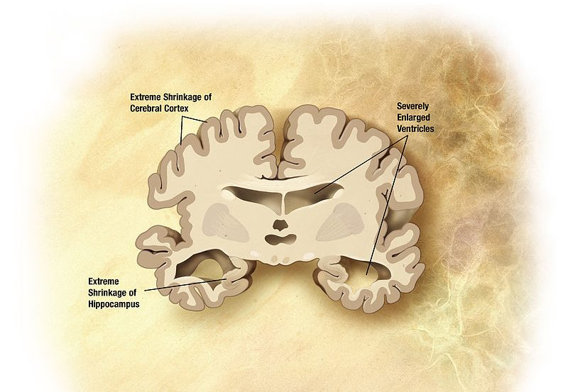 The illustration is a brain slice with advanced stage alzheimer's.
