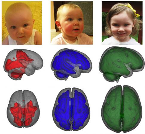 The image shows the differences in the brain scans between the breast fed and formula fed babies.