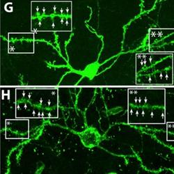 Images shows new medium spiny neurons (in green) integrating into brain's existing networks
