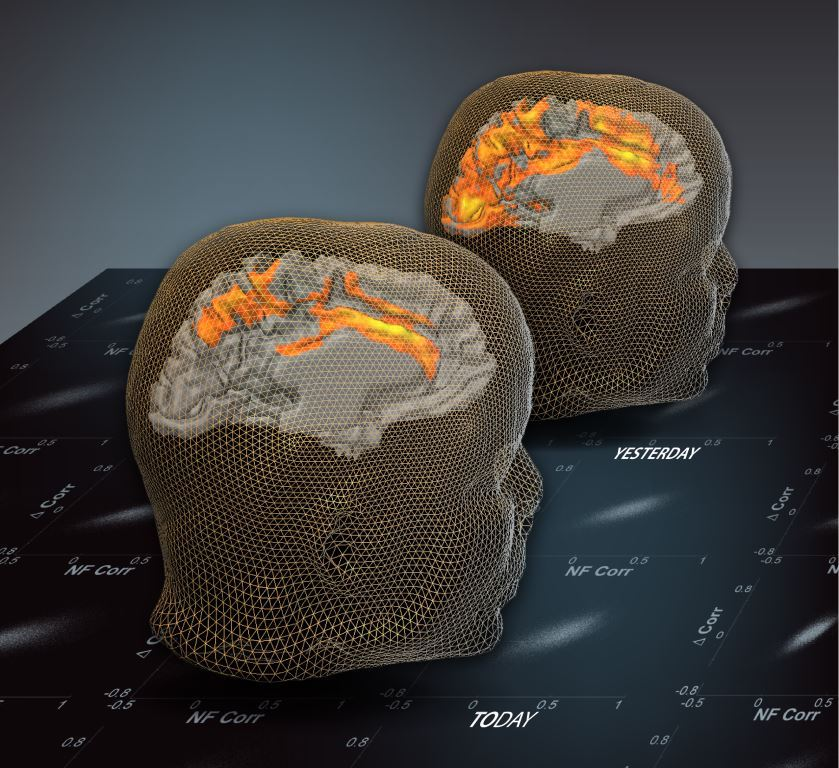 The image shows the brain one day after activation. The caption best describes the image.