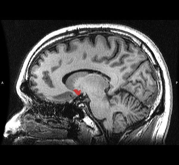 The image shows the location of the nucleus accumbens in the brain.