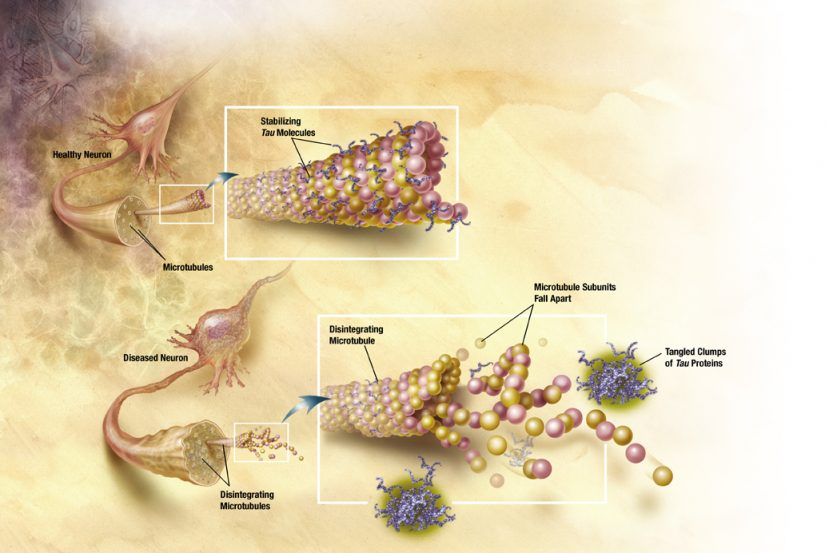 The image shows the tau proteins associated with Alzheimer's disease.