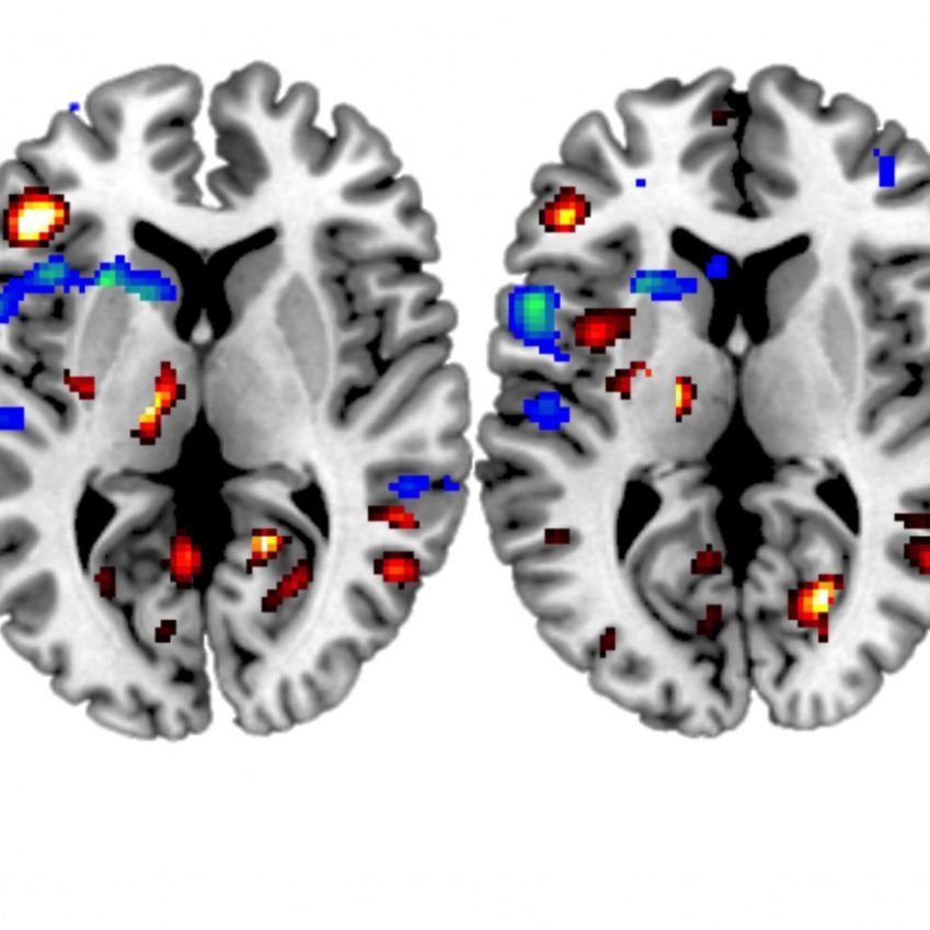 The image shows an fMRI of a participant with a stroke viewed performing actions mentioned in the research.