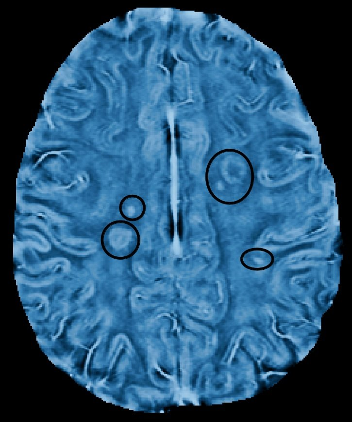 The image shows an mri brain scan of a patient with MS.