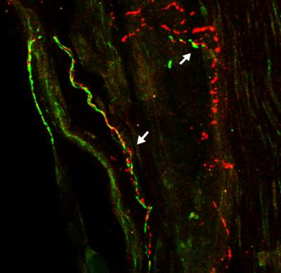The image shows the sympathetic nerve fibers. The caption best describes the image.