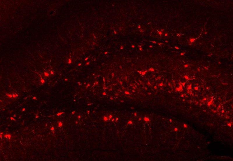 The image shows Arc immunohistochemical staining of the rat (Rattus norvegicus) dentate gyrus..