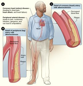 The image shows the effects of smoking on the body.