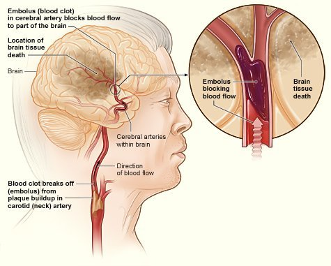 The illustration shows how an ischemic stroke can occur in the brain.