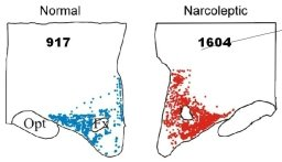 The image shows the different number of histamine cells in narcoleptics compared to those without the disorder.