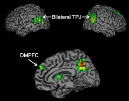 This brain scan image shows activation in the bilateral TPJ and DMPFC.