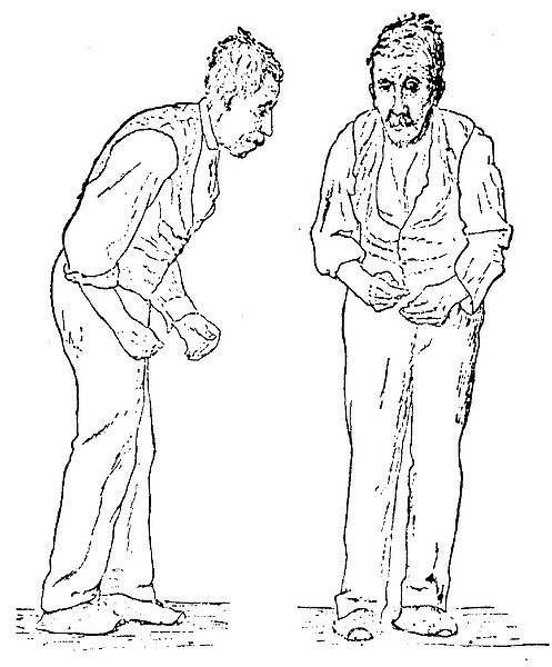 This is Sir William Richard Gower's famous Parkinson's disease sketch.
