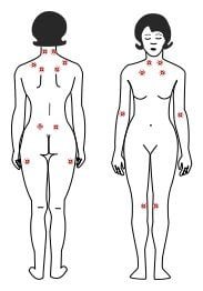 this image shows the tender points associated with fibromyalgia.