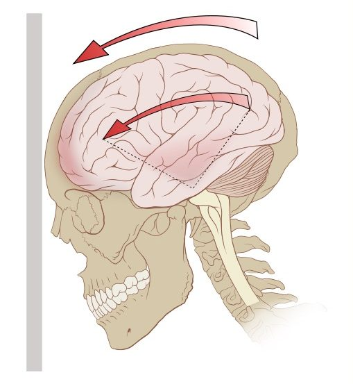 A diagram of the forces on the brain in concussion.