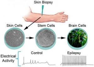 The image shows the process the researchers take when performing this study. The caption best describes the image.