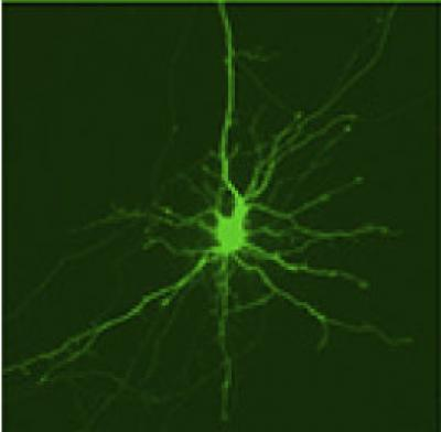 This is an image of a striatal neuron with activated Dendra2 protein.