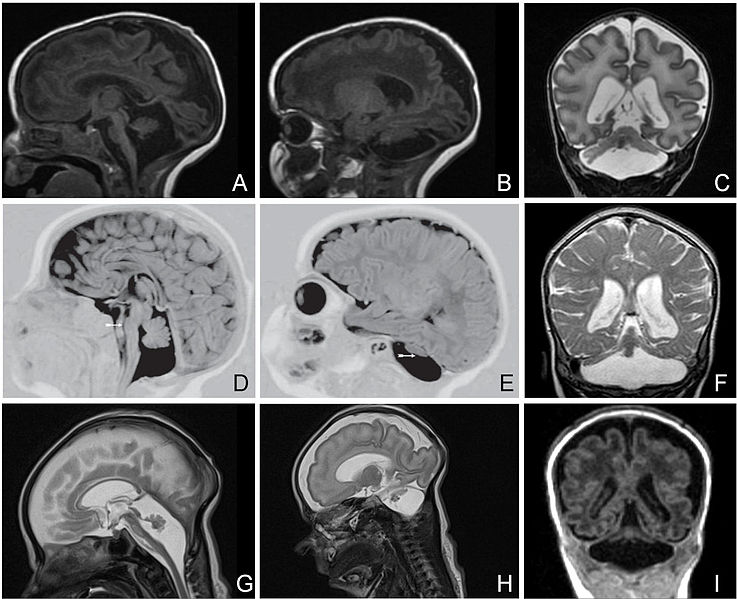 The image shows MRI brain scans of patients with Pontocerebellar hypoplasia.