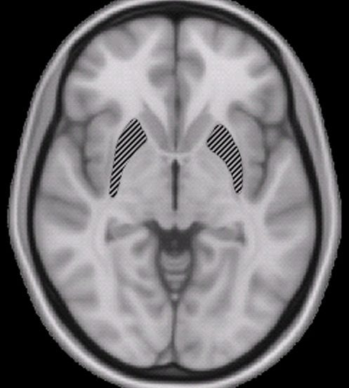 This brain scan shows the location of the putamen in the brain.